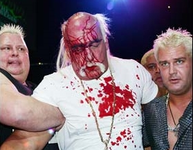 Ric Flair left fellow wrestling legend Hulk Hogan a bloody mess as the pair kicked off their tour of Australia thumbnail