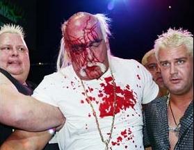Ric Flair left fellow wrestling legend Hulk Hogan a bloody mess as the pair kicked off their tour of Australia thumbnail
